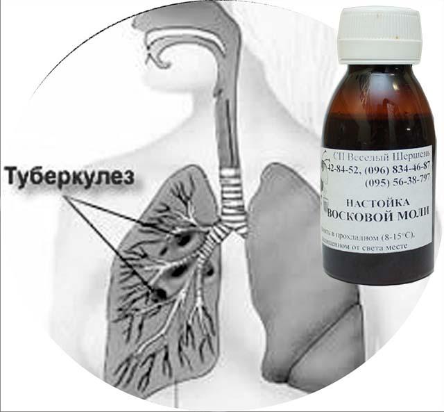 как лечить туберкулез настойкой восковой моли