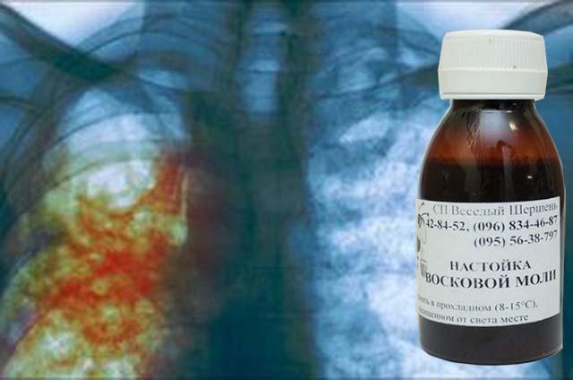 Как пить восковую моль при туберкулезе