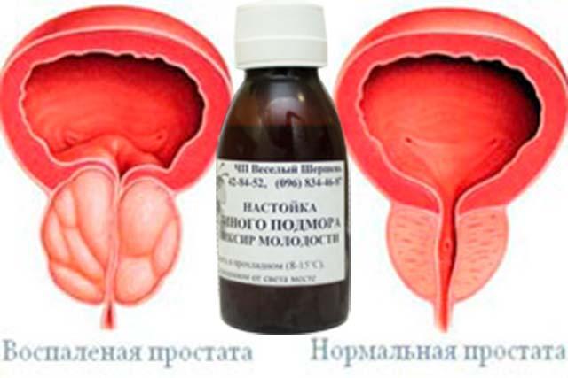 Лечения аденома простатита народными средствами