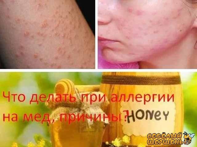 Симптомы аллергии на мед у взрослых. Как проявляется