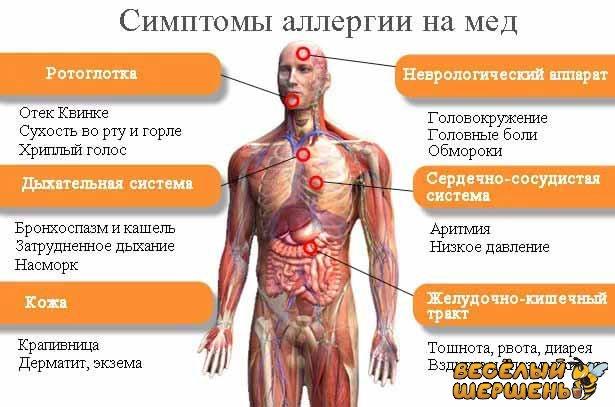 симптомы аллергии на мед у детей