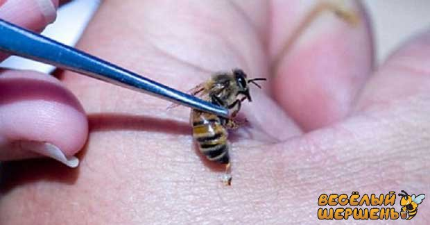 Лікування укусами бджіл - чи це безпечно?