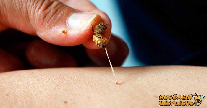 Лікування бджолами - чи це безпечно?