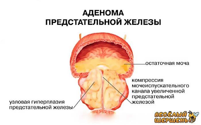 Прополиса настойка при аденоме простаты